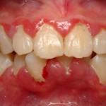 Viêm chân răng uống thuốc gì nhanh khỏi nhất?