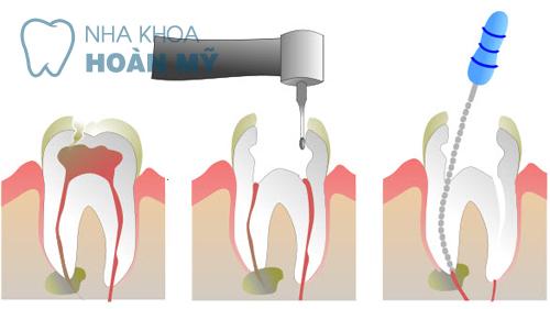 Điều trị tủy răng khi bị sâu răng thì có đau không