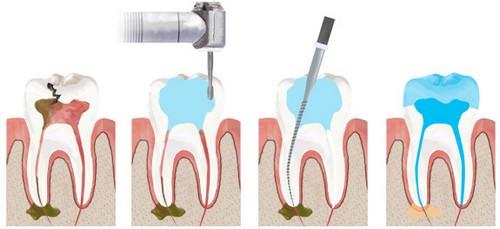 Quy trình lấy tủy răng tiêu chuẩn quốc tế – Nk Paris