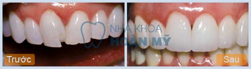 Răng bị sứt mẻ phải làm sao để khắc phục triệt để? 2