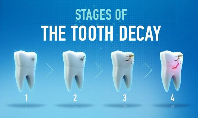 Cách làm giảm đau răng sâu nào hiệu quả nhất? 1