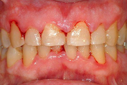 Trị viêm nướu cho chân răng bằng cách nào