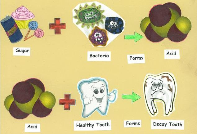 Trị tận gốc bệnh đau răng sâu như thế nào