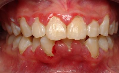 cách chữa trị viêm nướu răng chưa bao giờ đơn giản đến thế