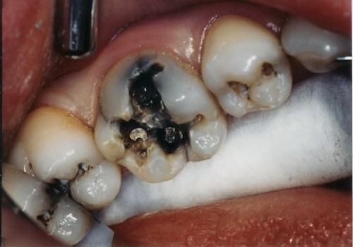 Sâu răng sữa ở trẻ em có nguy hiểm không ?