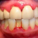 Đầy đủ thông tin về viêm quanh cuống răng bạn cần phải biết