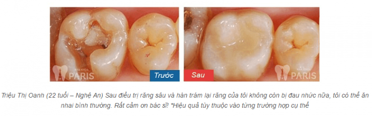 chữa răng sâu ở đâu
