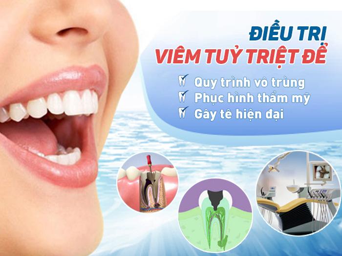 Top 7 Cách lấy tủy răng Không Đau & An Toàn nhất 2