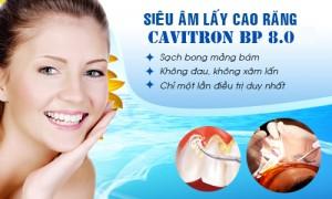 Cách chữa viêm chân răng có mủ tốt nhất2