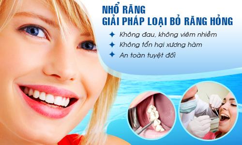 Mọc răng khôn phải làm sao để điều trị nhanh chóng nhất? 3