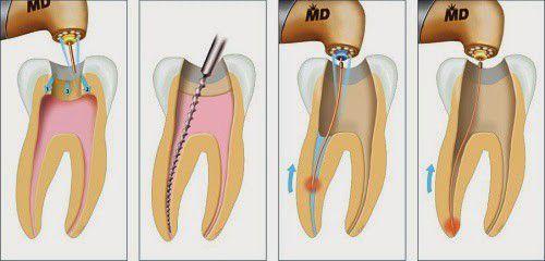 """Bác sỹ tư vấn """"Hút tủy răng có đau không?"""""""