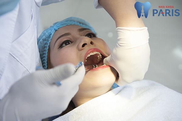 Làm cách nào để hết nhức răng nhanh nhất? 2