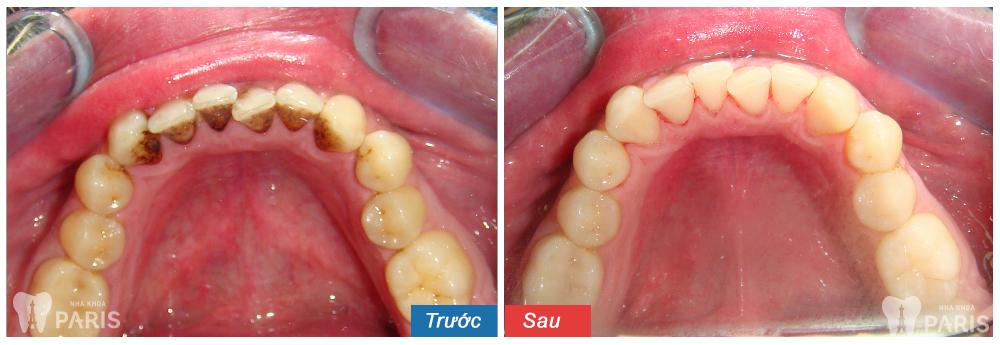 Cách chữa viêm lợi chảy máu chân răng hiệu quả triệt để nhất 3