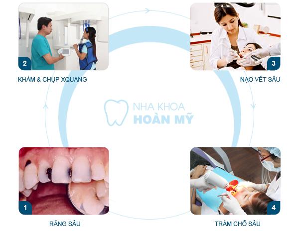 Chữa răng sâu ở đâu tốt nhất tại Hà Nội? 2