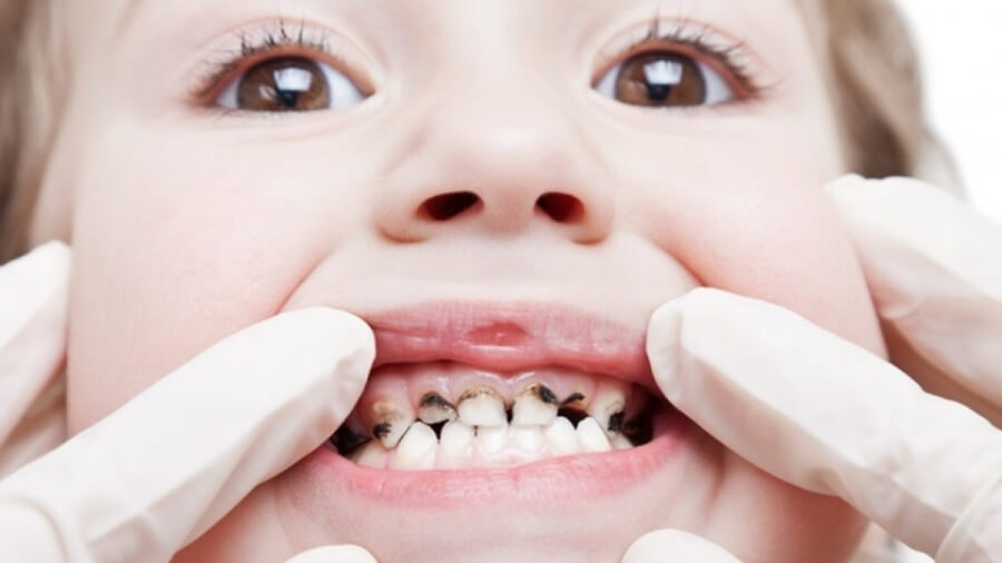 Trẻ đau răng phải làm sao? Cách chữa đau răng trẻ em Tại Nhà 2