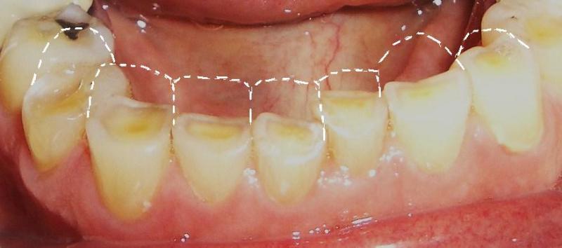 Làm gì khi răng bị ê buốt để hết ngay lập tức? 2