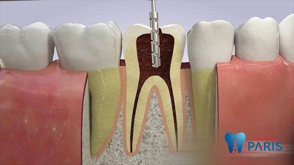Top 7 Cách lấy tủy răng Không Đau & An Toàn nhất 1