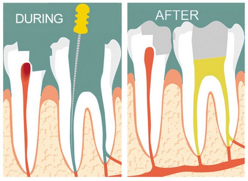 Lấy tủy răng bao nhiêu tiền tại Nha khoa Hoàn Mỹ?