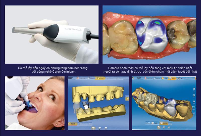 Trám răng xong bị nhức phải làm sao