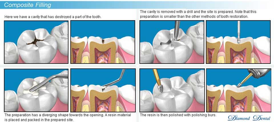 Nhức răng sau khi trám - nguyên nhân do đâu? 3