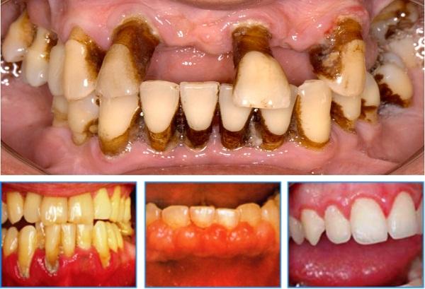 Những triệu chứng viêm chân răng không thể coi thường 2