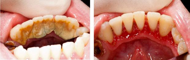Nướu răng bị sưng - nguyên nhân và cách điều trị 3