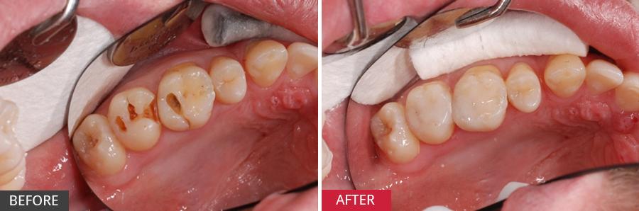 Phương pháp nào điều trị răng bị sâu nặng tốt nhất?