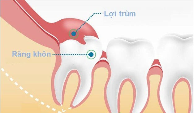 Viêm lợi trùm răng khôn uống thuốc gì để giảm đau sưng nhanh nhất 1
