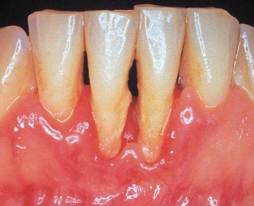 Bị viêm loét chân răng có nguy hiểm không?1