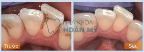 Cách chữa viêm lợi chân răng cấp tốc bạn nên biết 3