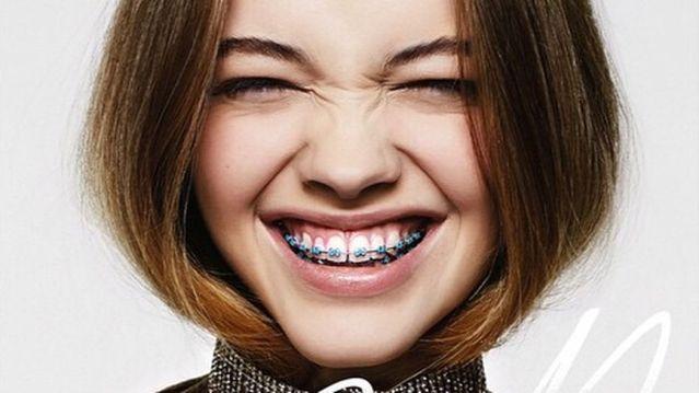 TOP nguyên nhân chính làm bạn bị ê răng khi niềng răng