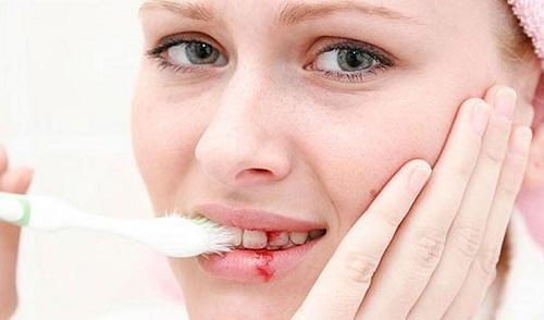 Kết quả hình ảnh cho Làm thế nào để tôi điều trị bệnh nha chu răng