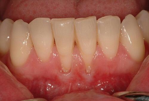 Biến chứng cực nguy hiểm của viêm chân răng không thể bỏ qua! 1