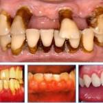 Triệu chứng viêm chân răng và cách chữa trị dứt điểm nhanh nhất