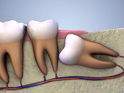 Phải làm sao khi mọc răng khôn bị đau nhức dữ dội? 1