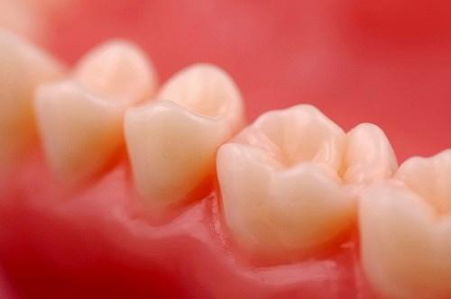 Nên làm gì khi bị sưng nướu răng và chảy máu chân răng?