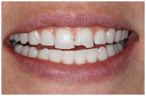 Răng sứt mẻ phải làm sao?-Cách khắc phục sứt mẻ răng nhanh nhất?