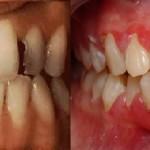 Nguyên nhân nào gây đau nhức răng cửa?