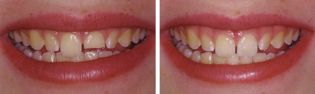 Tại sao răng bị mẻ và làm thế nào để khắc phục?