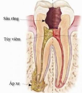 Thông tin về viêm chóp răng và cách chữa trị triệt để nhất 3