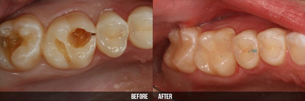 Bệnh sâu răng ở người lớn điều trị như thế nào?
