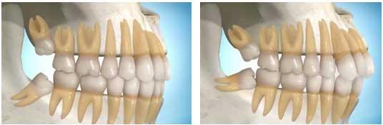 Đau răng sưng má phải làm sao để điều trị cấp tốc? 2