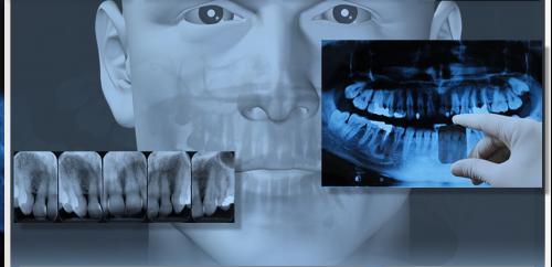 Thông tin về viêm chóp răng và cách chữa trị triệt để nhất 5