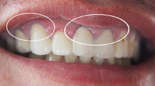 Nguyên nhân nướu răng bị thâm đen