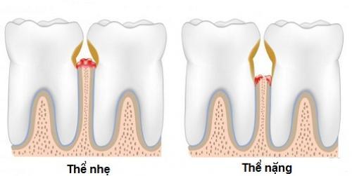 Thuốc điều trị viêm tủy răng an toàn triệt để nhất
