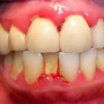 Cách chữa sưng mộng răng nào triệt để và nhanh nhất?