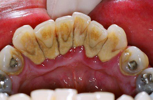 Cách chữa sưng mộng răng nào triệt để và nhanh nhất? 2