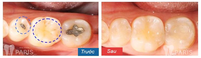 Cẩm nang các cách chữa bệnh sâu răng hiệu quả nhất 3