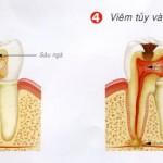 Những cách chữa bệnh sâu răng tốt nhất hiện nay – Nk Paris