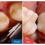 Răng hàm bị sâu có nên nhổ đi không thưa bác sỹ?